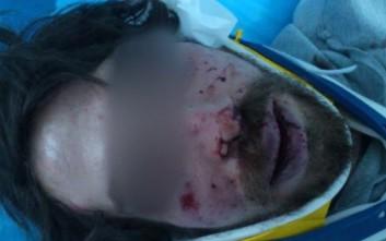 Μετακλητός υπάλληλος της Χρυσής Αυγής ο 42χρονος που συνελήφθη για τον ξυλοδαρμό του φοιτητή