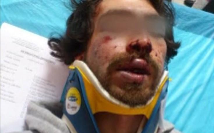 Απολογείται το μέλος της Χρυσής Αυγής για την επίθεση στο φοιτητή