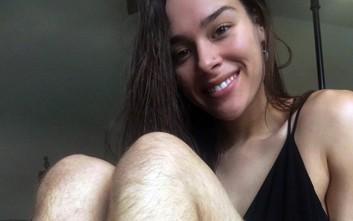 Η fitness blogger που αρνείται να ξυρίσει πόδια και μασχάλες