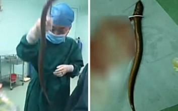 Έβαλε χέλι στο σώμα του για να αντιμετωπίσει τη δυσκοιλιότητα και κατέληξε στο νοσοκομείο