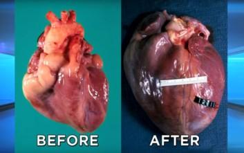 Πώς γίνεται η καρδιά μετά από μακροχρόνια χρήση κοκαΐνης