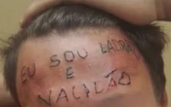 Έκαναν τατουάζ «Είμαι κλέφτης» στο μέτωπο εφήβου για να τον τιμωρήσουν