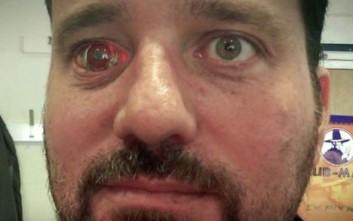 Ο κινηματογραφιστής με το μάτι… κάμερα