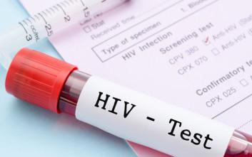 Πρόσβαση σε δωρεάν και ανώνυμες εξετάσεις για AIDS