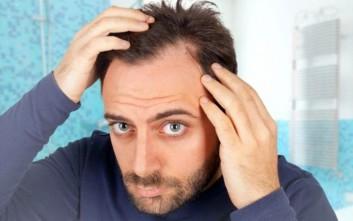 Τρεις μύθοι για την απώλεια μαλλιών που δεν ισχύουν