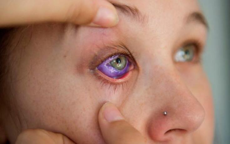 Μοντέλο έκανε τατουάζ στο μάτι και κινδυνεύει να τυφλωθεί