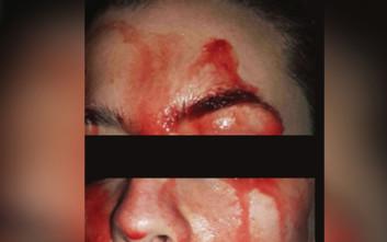 Η ανεξήγητη περίπτωση της γυναίκας που ιδρώνει αίμα