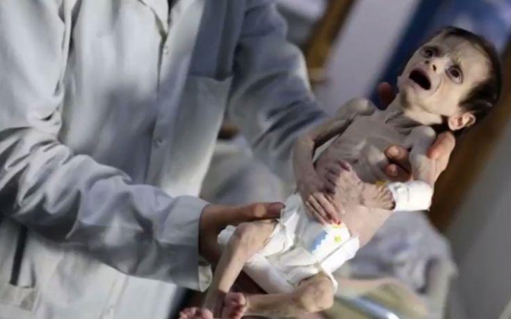 Η πιο σκληρή αποτύπωση του φρικτού προσώπου του πολέμου στη Συρία