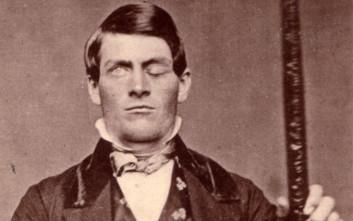 Ο άνθρωπος που έζησε παρά το γεγονός ότι μια σιδερόβεργα καρφώθηκε στο κεφάλι του
