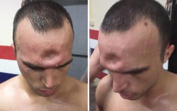 Μαχητής πολεμικών τεχνών είχε έναν σοκαριστικό τραυματισμό