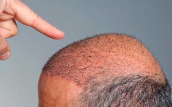 Γιατί κάνουν comeback οι «εξόφθαλμες» μεταμοσχεύσεις μαλλιών;