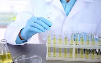 Τεστ ούρων ανιχνεύει τη φυματίωση