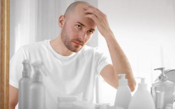 Επιστήμονες πιστεύουν πως βρήκαν επιτέλους τη θεραπεία της φαλάκρας