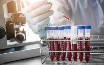 Με μία σταγόνα αίματος το πρώτο απλό τεστ γρήγορης διάγνωσης της σήψης