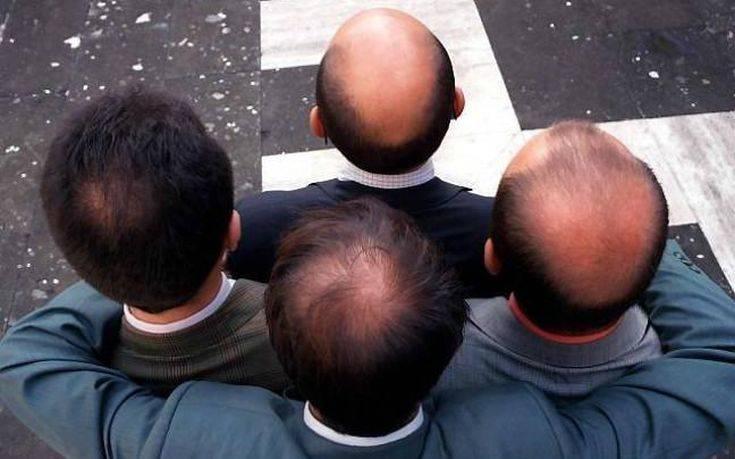 Οι μεταμοσχεύσεις μαλλιών αποφέρουν στην Τουρκία 1 δισ. ευρώ ετησίως