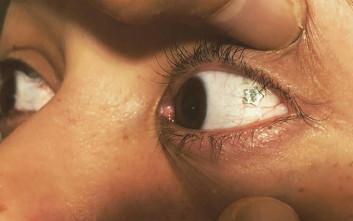 H νέα μόδα προστάζει… κοσμήματα στα μάτια