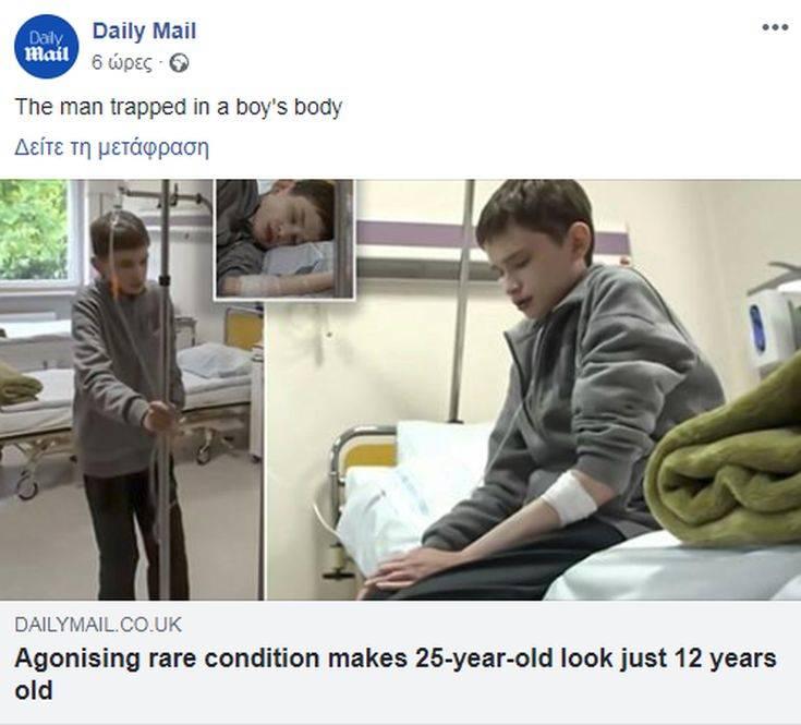 Ο 25χρονος που μοιάζει με 12χρονο παιδί λόγω σπάνιας πάθησης