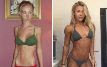 Ζύγιζε 26 κιλά και σήμερα είναι fitness model