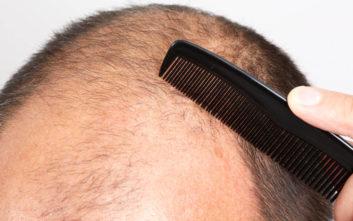 Φαλακρός απατεώνας χρησιμοποιεί τη λεία για να… βάλει μαλλιά