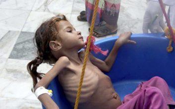 Περίπου 85.000 παιδιά κάτω των πέντε ετών έχουν πεθάνει από πείνα στην Υεμένη