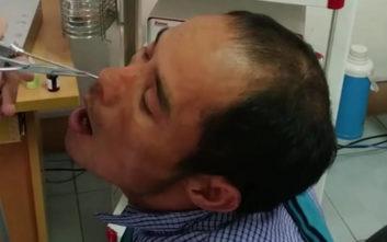 Το αηδιαστικό πλάσμα που βγήκε από τη μύτη ενός άντρα