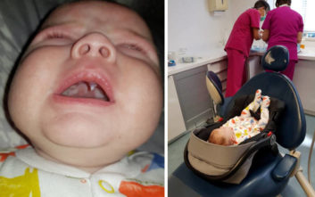 Σοκαρισμένοι γονείς και γιατροί με μωρό που έβγαλε… κυνόδοντα βρικόλακα