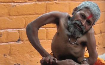 Ο ιερέας με τα «εύπλαστα κόκαλα» παραμένει ιατρικό αξιοπερίεργο