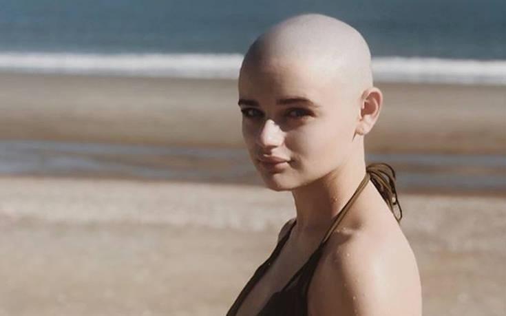 Ξύρισε το κεφάλι της για ρόλο και εκείνος φοβόταν να κάτσει δίπλα της «για να μην κολλήσει καρκίνο»