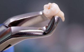 Διάσημος ηθοποιός έχασε το δόντι του ενώ έτρωγε ψωμί