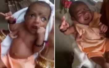 To μωρό που γεννήθηκε με τρία χέρια και λατρεύεται ως Θεός