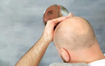 Μεταμόσχευση μαλλιών, η μόνη οριστική λύση στην αραίωση μαλλιών