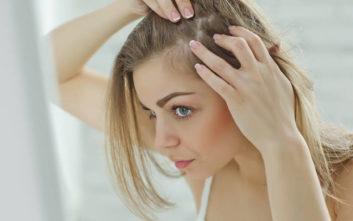 Η πανδημία φέρνει ακόμη και απώλεια μαλλιών