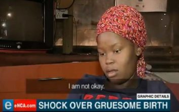 Γυναίκα γέννησε αποκεφαλισμένο το παιδί της