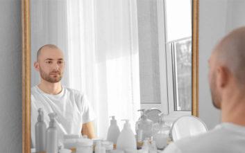 Αποφασίσατε να κάνετε μεταμόσχευση μαλλιών;