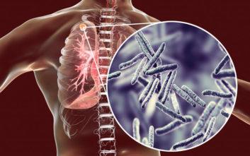 Καμπανάκι από την Ελληνική Πνευμονολογική Εταιρία για τη φυματίωση