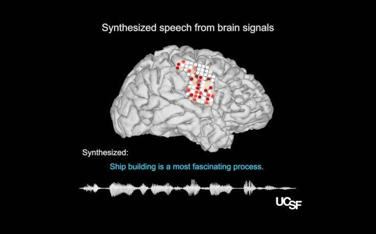 Η νέα τεχνολογική ανακάλυψη που δίνει ελπίδα στους ανθρώπους που δεν μπορούν να μιλήσουν
