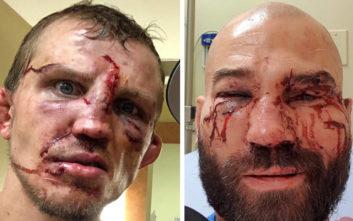 Μποξέρ αγωνίστηκαν χωρίς γάντια και το αποτέλεσμα είναι τρομακτικό