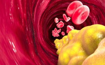 Η σχέση των επιπέδων της «κακής» χοληστερίνης με το εγκεφαλικό