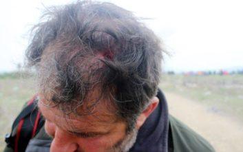 Καταγγελία για αστυνομική βία με θύμα φωτορεπόρτερ στα Διαβατά