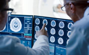 Αντιδρά η Ελληνική Ομοσπονδία Καρκίνου για τις αλλαγές σε μαγνητικές και αξονικές