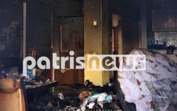 Με βαριά εγκαύματα 70χρονος μετά από φωτιά στον Πύργο