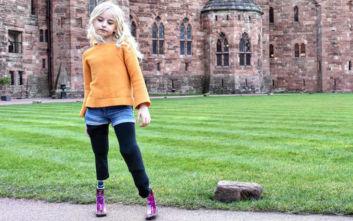 Η 9χρονη με διπλό ακρωτηριασμό που κάνει τα πρώτα της βήματα στις πασαρέλες