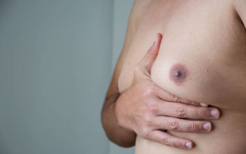 Ο επιχειρηματίας από τη Θεσσαλονίκη που νόσησε από καρκίνο του μαστού
