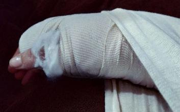 Στο νοσοκομείο με σπασμένο χέρι Ελληνίδα τραγουδίστρια