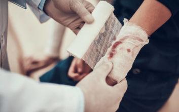 Έκοψε τα δάχτυλά του για να τα δώσει σε φίλο που είχε χάσει τα δικά του