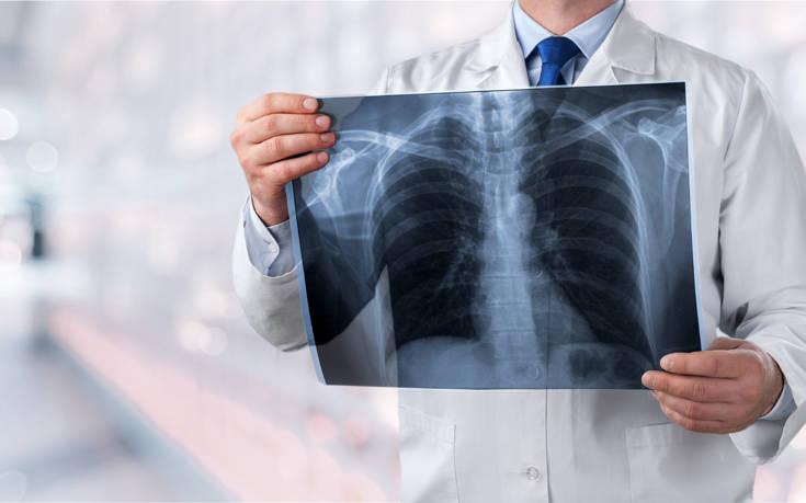 Χρόνια Αποφρακτική Πνευμονοπάθεια: Αυξάνονται σε παγκόσμιο επίπεδο τα ποσοστά