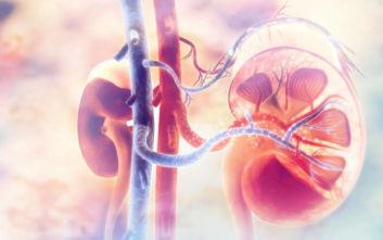 Περιμένουν μέχρι και 7 χρόνια στη λίστα για μεταμόσχευση νεφρού