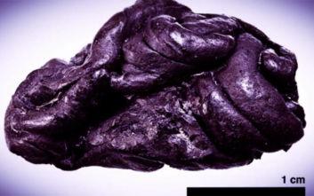 Επιστήμονες ανακάλυψαν ανθρώπινο DNA πάνω σε μια... τσίχλα 5.700 ετών