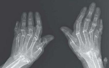 Τι είναι τα «τηλεσκοπικά δάχτυλα» με τα οποία κατέληξε μια γυναίκα