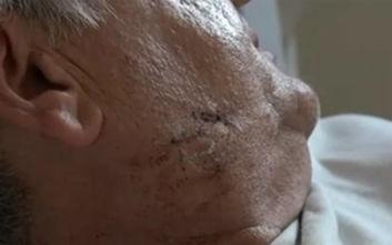 Βόλος: Σκύλος επιτέθηκε σε ταχυδρόμο, «ένιωθα να μου τρώει χέρια και πόδια»